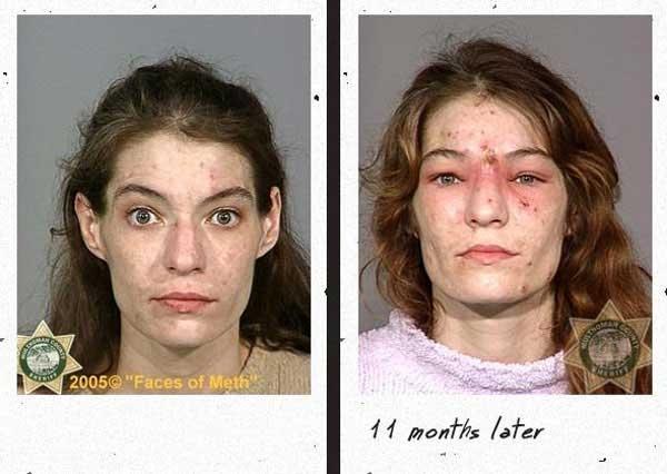 Жертвы метамфетамина (12 фото)