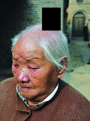 У китайца на голове вырос рог