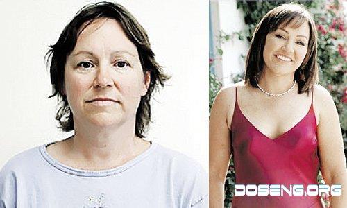 Женщины до и после пластики (10 фото + текст)
