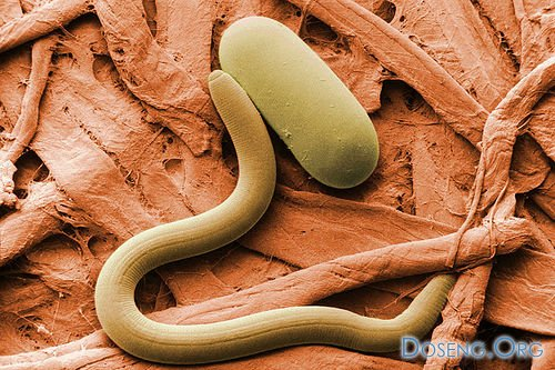 кожа через микроскоп фото