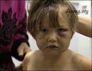 Пьяная мать пыталась зарезать трехлетнюю дочь