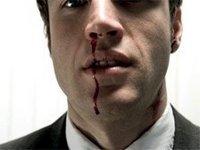 Как справиться с носовым кровотечением?