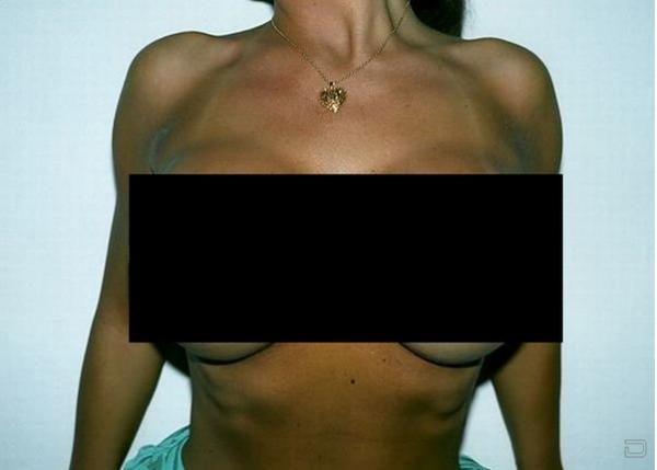 Большая грудь?Легко!