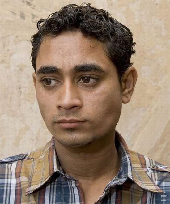 Человек-ящерица из Индии (5 фото)