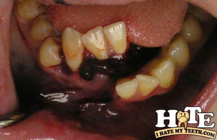 В стоматологию помчался. Похожие посты. А мне на днях коренной зуб