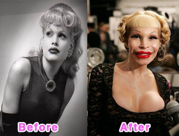 Знаменитости до и после неудачной пластики (16 фото)