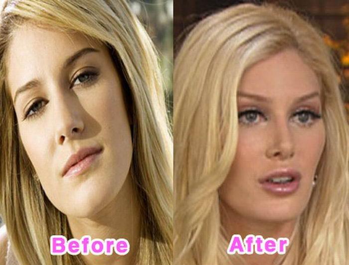 Знаменитости до и после неудачной