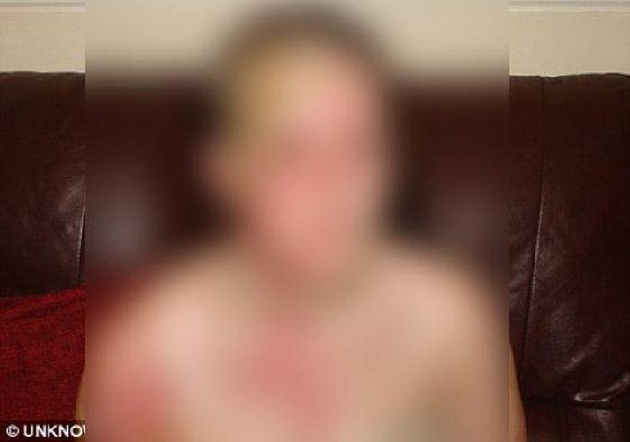 Что сделали врачи с симпатичной девушкой. Жесть (5 фото)