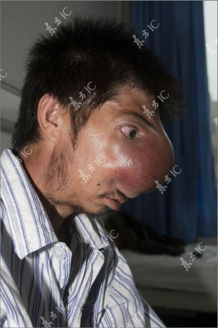 Самый большой нос у человека фото