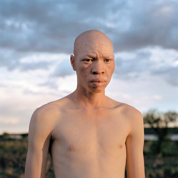Бескровные люди- альбиносы