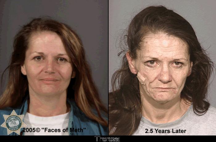Фотографии наркоманов до и после