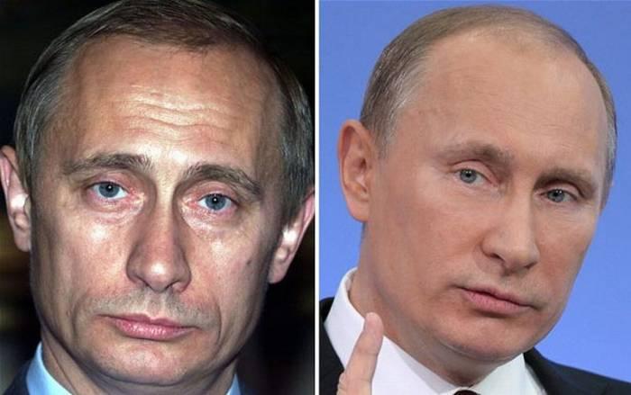 Путин делает инъекции ботокса? (19 фото)