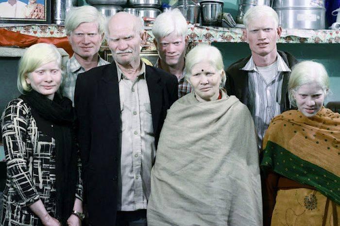 Уникальная семья альбиносов из Индии (17 фото)