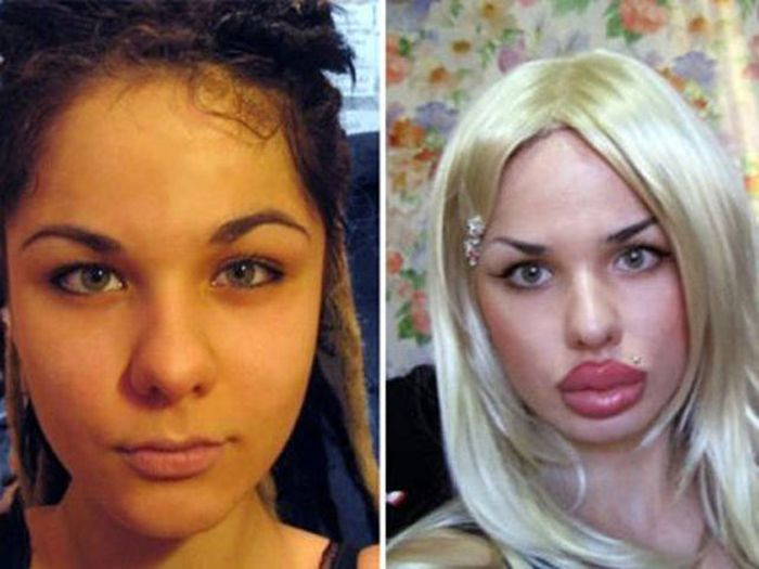 самые необычные пластические операции фото до и после все дело