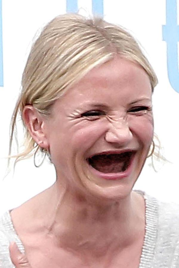 Как выглядят люди без зубов