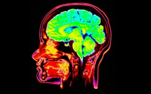 Истории о человеческом мозге