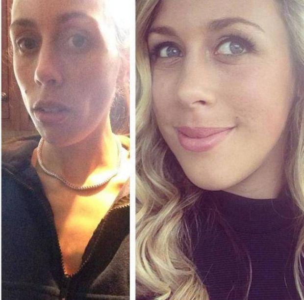 Девушки победившие анорексию