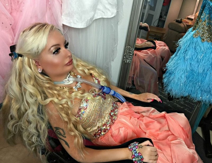 Парализованная девушка в инвалидном кресле стремится стать похожей на Барби