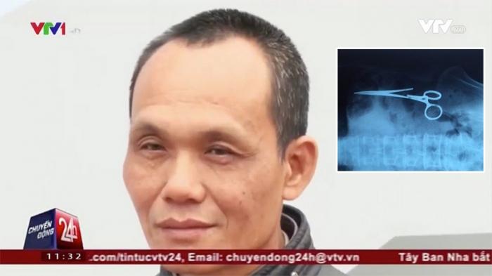 Во Вьетнаме из тела мужчины извлекли зажим, забытый 18 лет назад