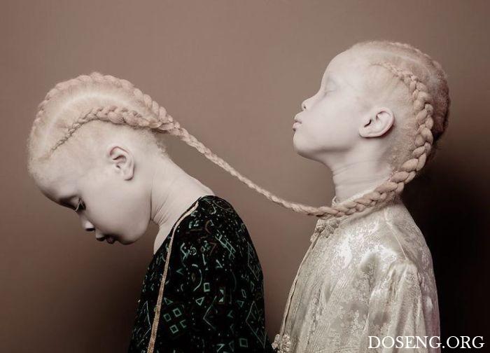 11-летние сестры-альбиносы покорили мир моды