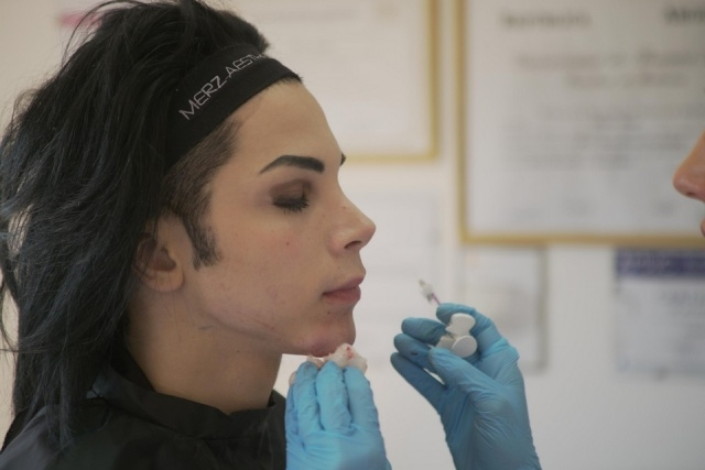 Лео Бланко потратил более 30 тысяч долларов, чтобы стать похожим на Майкла Джексона
