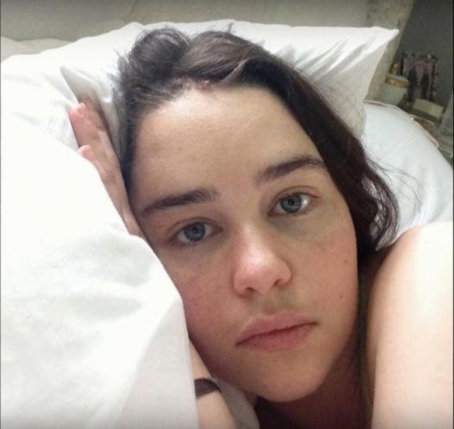 Фотографии Эмилии Кларк в больничной палате после инсульта