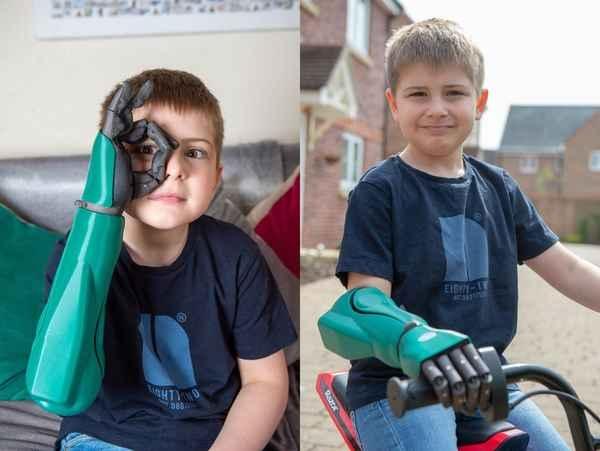 Самый молодой обладатель бионической руки - 8-летний Фредди