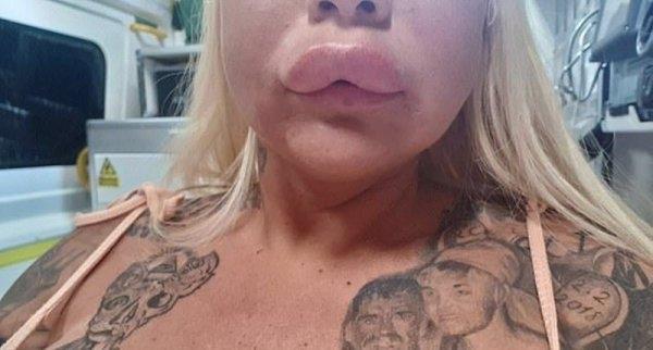 Порнозвезда хотела избавиться от старых губ, а получила другой результат