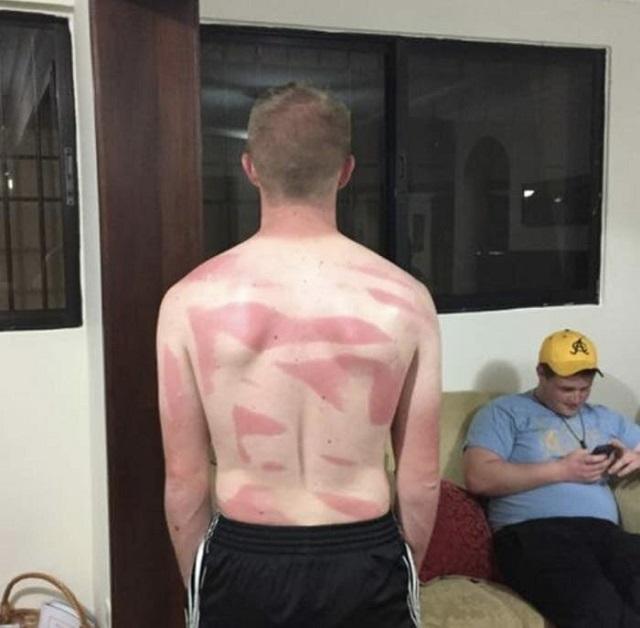 Этим ребятам нужно объяснить, как правильно пользоваться солнцезащитными средствами