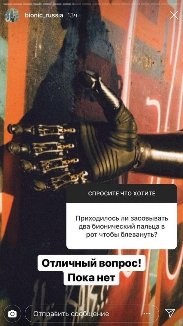 Бионическая рука: вопросы и ответы