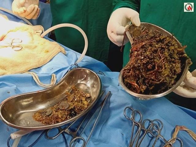 Один день из жизни индийских хирургов