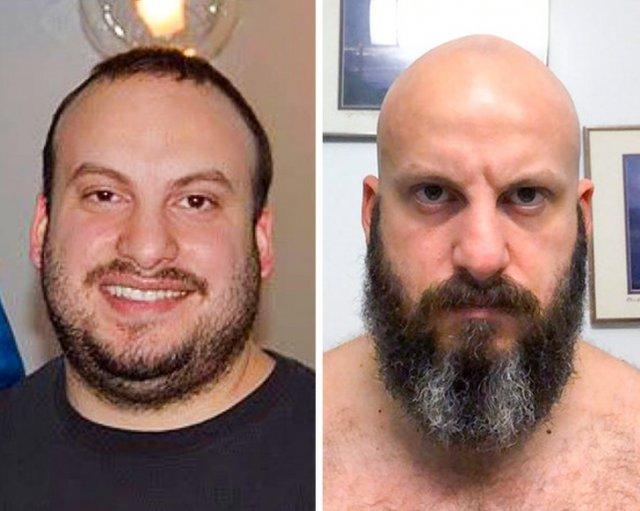 Люди показали свои фотографии до и после