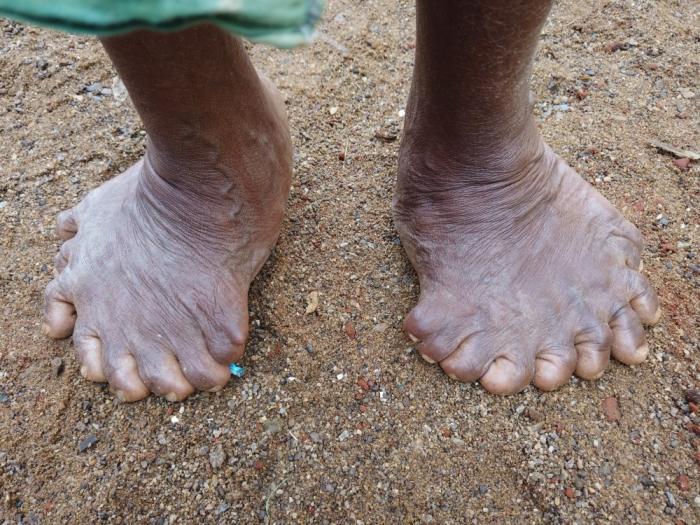 У индианки 31 палец на руках и ногах, из-за чего соседи считают ее ведьмой
