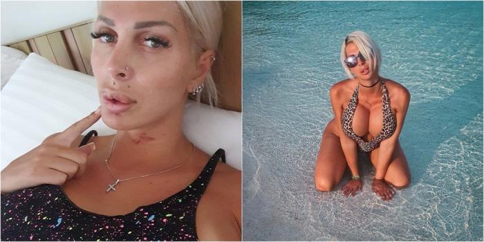 Бьюти-блогер заявила, что ее избили на курорте из-за большой груди