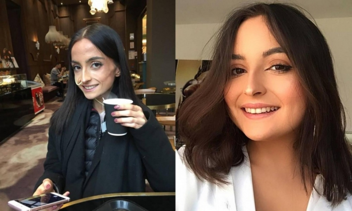 Студентка победила анорексию и стала красавицей