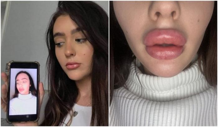 Стюардесса хотела увеличить губы, но её изуродовали так, что пришлось прятать лицо даже от бойфренда